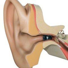 戴助听器的年龄应越小越好!